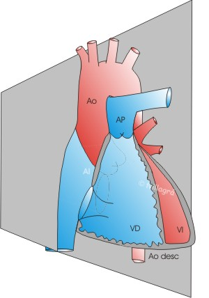 Diagnostico fetal de las cardiopatías congénitas, Ecocardiografía ...