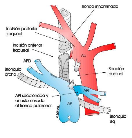 Anillo vascular. Web de las cardiopatías Congénitas.