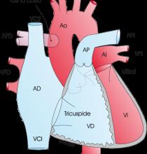 1.3.2.-hemitronco-arterial.a.1