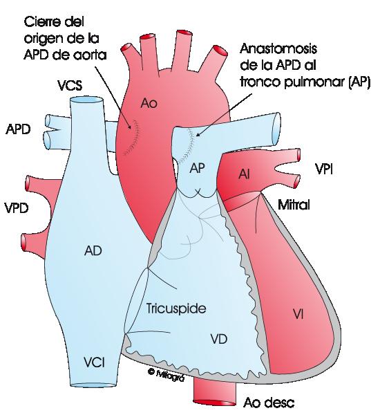 Hemitronco arterial (Arteria pulmonar nace de la aorta).