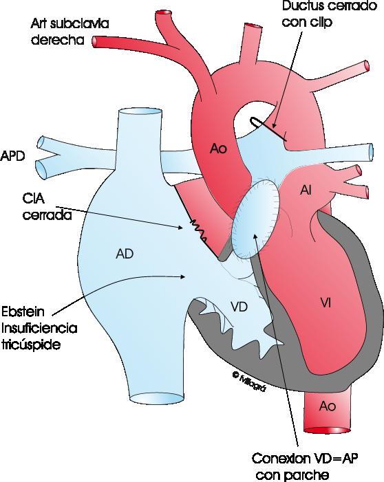 Atresia pulmonar con septo intacto. Web Cardiopatías Congénitas