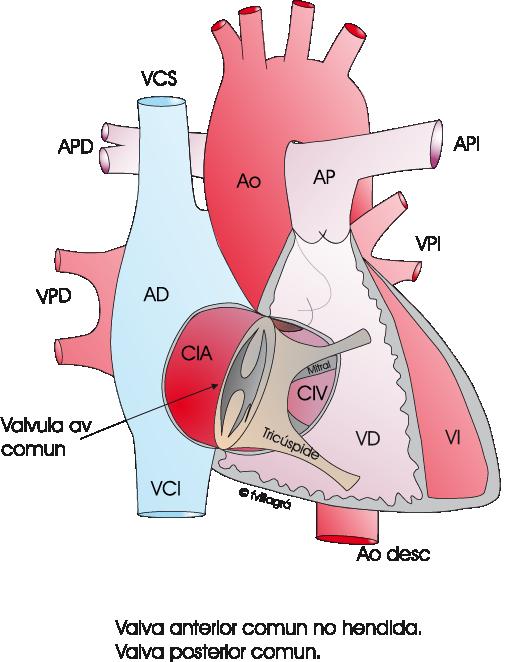 Canal av completo. Ostium Primum. Web Cardiopatías Congénitas