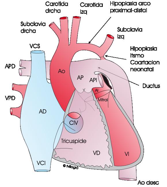 Coartación de aorta. Hipoplasia del arco aórtico - La web de las ...