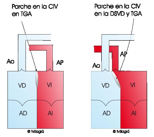 Doble salida del ventrículo derecho (DSVD) - La web de las ...