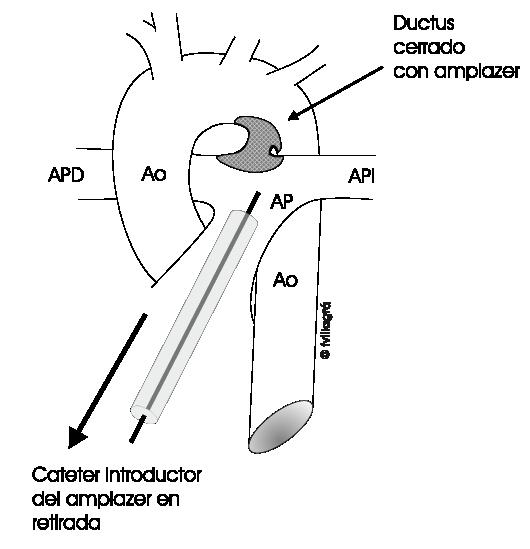 1.3.14.-ductuscerradoconamplazer.a.1