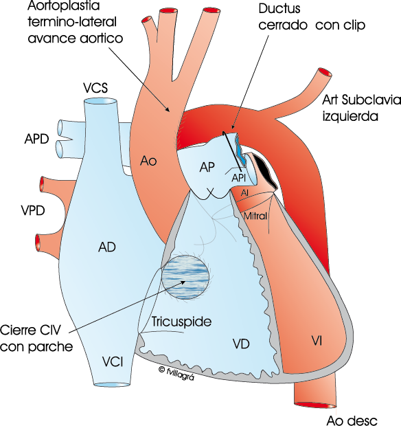 Interrupción del arco aórtico - La web de las Cardiopatías Congénitas