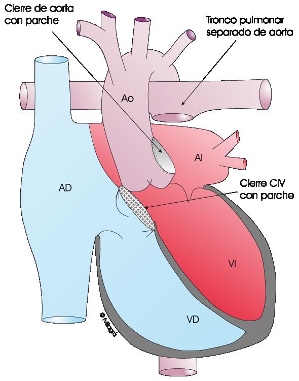 Truncus - La web de las Cardiopatías Congénitas