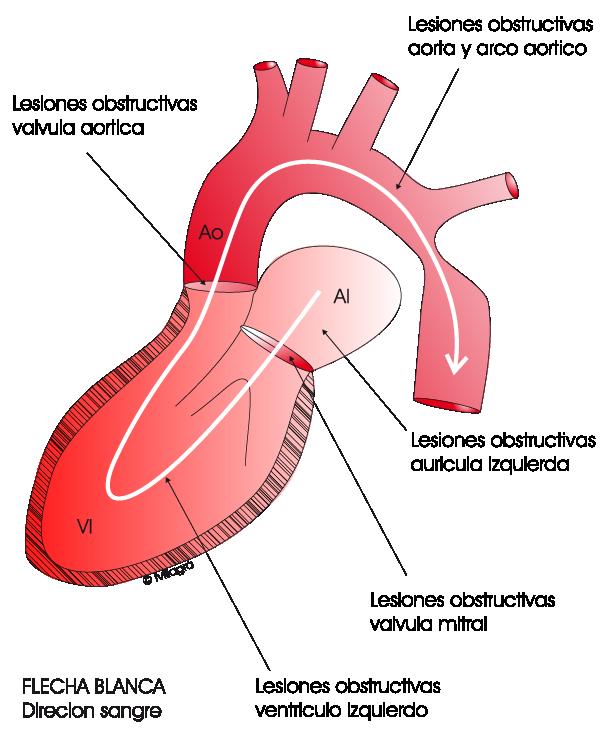 Insuficiencia valvular aórtica e hipertensión
