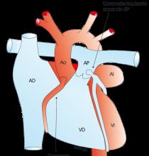 1.3.9.-coronariadeap.a.1