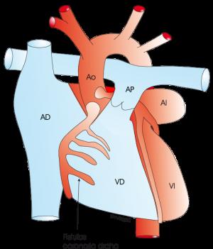 1.3.9.-coronariafistula.a.1