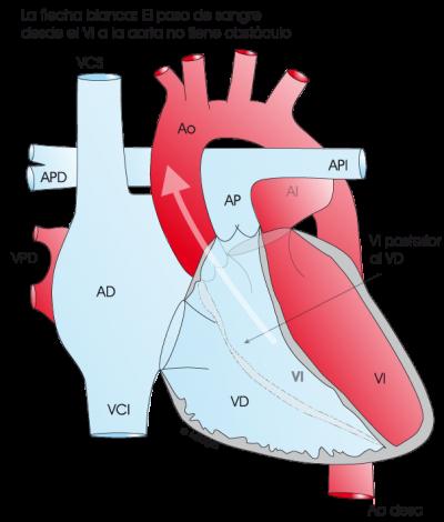 1.4.1.-corazon-con-ausencia-de-miocardiopatia.a.1