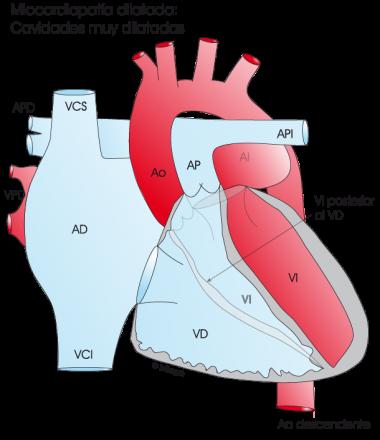 1.4.2.-corazon-con-miocardiopatia-dilatada.a.1