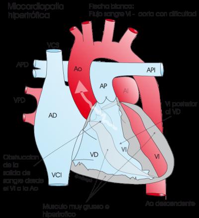 1.4.3.-corazon-con-miocardiopatia-hipertrofica-obstructiva.a.1