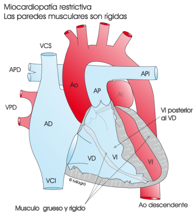 1.4.4.-corazon-con-miocardiopatia-restrictiva.a.1