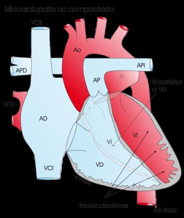 1.4.5.-corazon-con-miocardiopatia-no-compactada.a.1