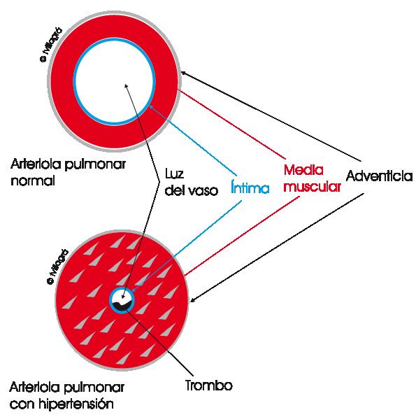 Etiologia de la hipertension arterial pulmonar