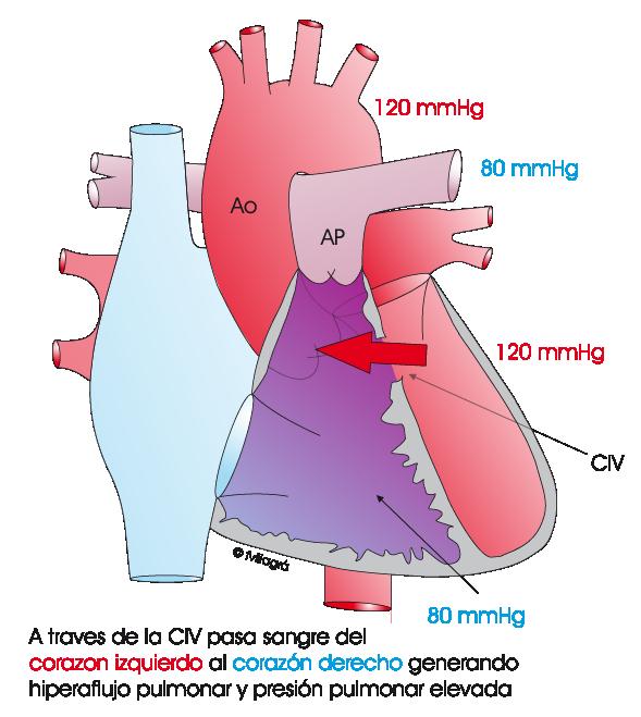 Hipertensión pulmonar, presión sistémica