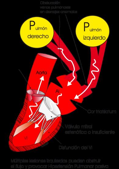 1.5.2.-hipertension-pulmonar-por-obstruccion-izquierda