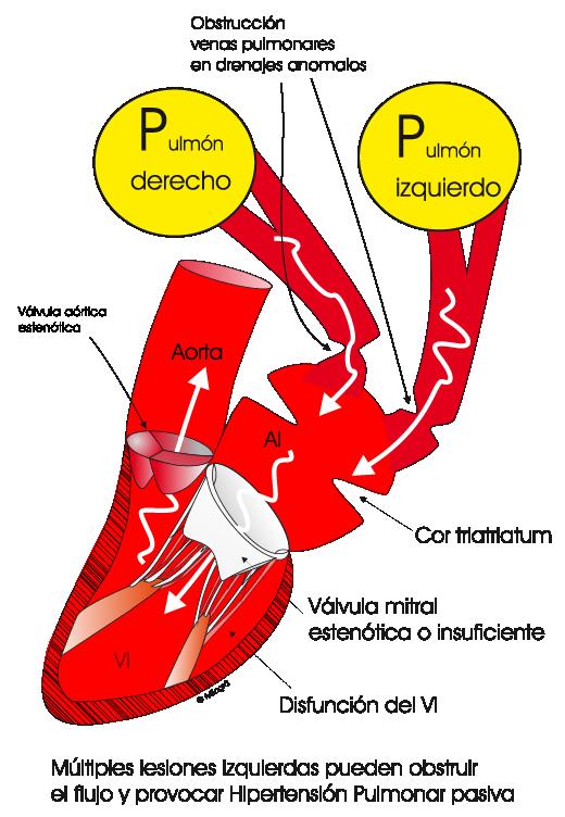 que es hipertensión pulmonar leve