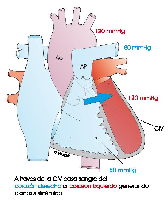 Herencia genética de hipertensión arterial pulmonar