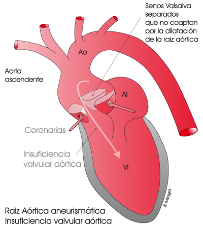 2.9.-raiz-aortica-aneurismatica.a.1