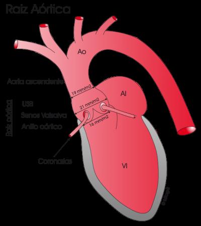 2.9.-raiz-aortica-normal.a.1