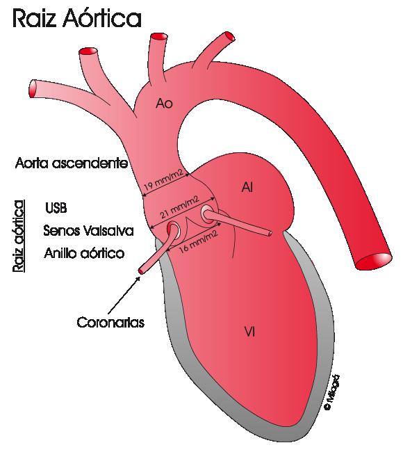 Cirugía de la válvula y raíz aórtica en cardiopatías congénitas del ...