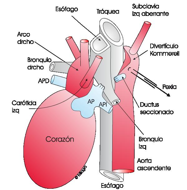 Anillo vascular - La web de las Cardiopatías Congénitas